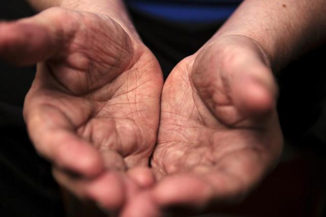 begging_beggar_hands_mod
